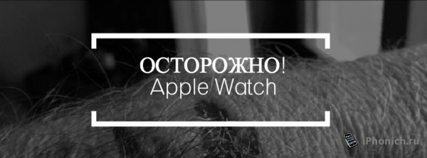 Осторожно! Apple Watch калечит людей.
